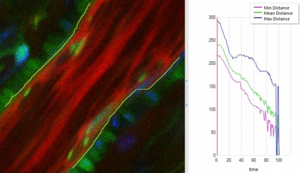 血管収縮の自動解析プログラム
