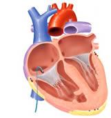 心房細動のアブレーション