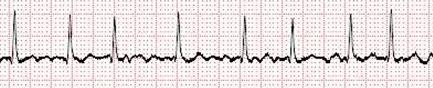 脈拍のグラフ