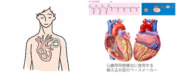 ph_disease05