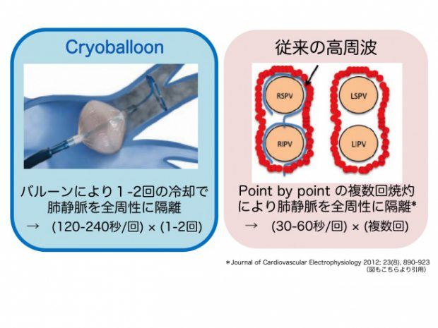 Cryoablation_2