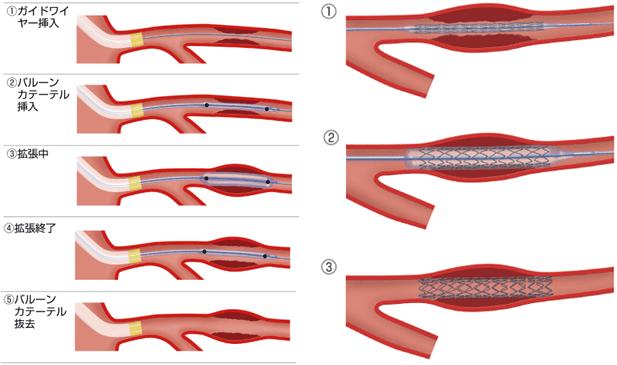 冠動脈形成術およびステント留置術の図1