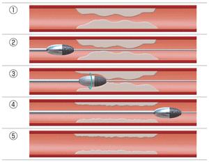冠動脈形成術およびステント留置術の図2