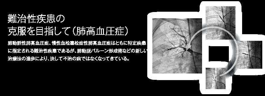 肺高血圧種<