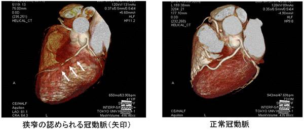 正常冠動脈と狭窄の認められる冠動脈の比較写真